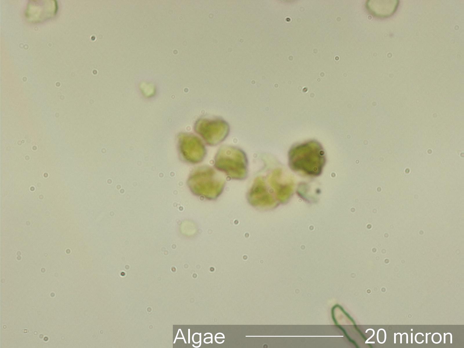 Airborne Algae Under the Microscope
