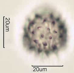 Arnica (Arnica cordifolia) Pollen under the Microscope
