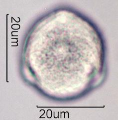 Pollen from Bleeding Heart (Lamprocapnos spectabilis) Under the Microscope