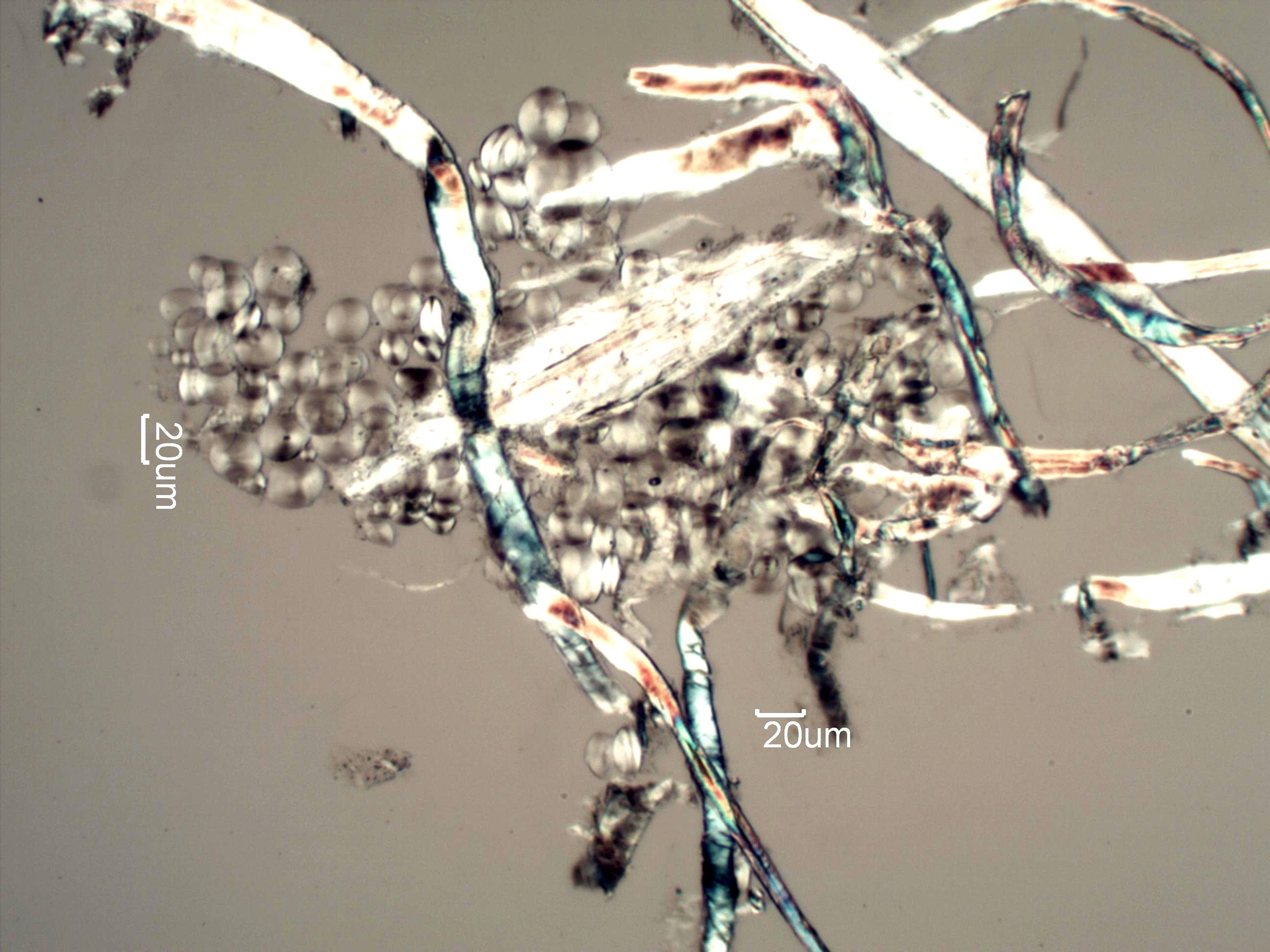 carbonless copy paper debris under the microscope