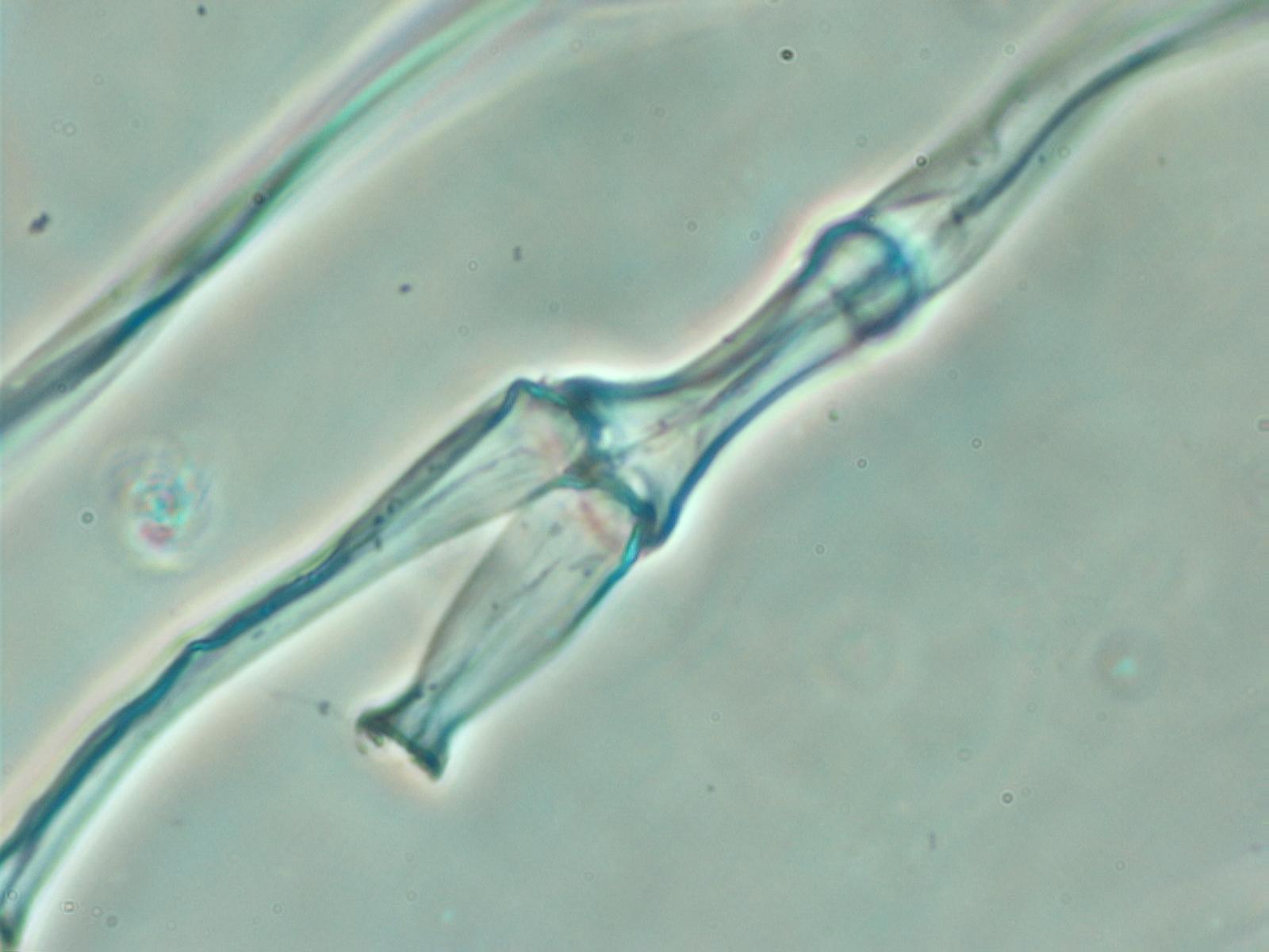 Cladophoria Algae Under the Microscope
