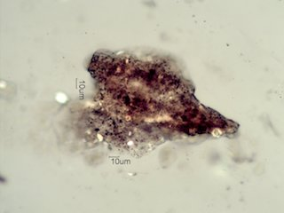 Dog Fecal Material in Home Under the Microscope