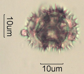 Dandelion (Taraxacum officinale) Pollen Under the Microscope