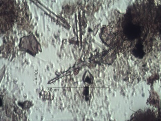 Spongilla lacustris Spicule Under the Microscope
