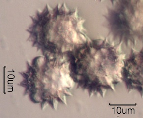 Yarrow Pollen Under the Microscope